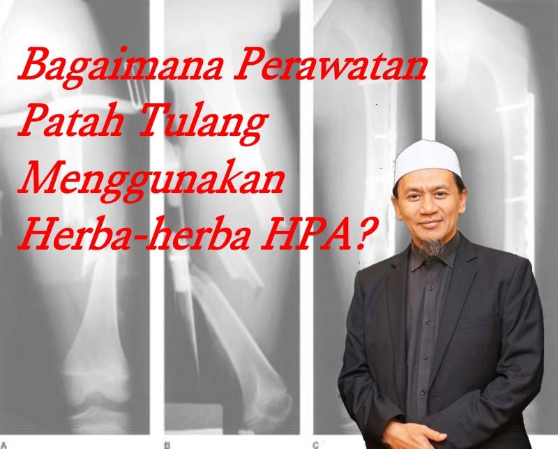 Perawatan Patah Tulang